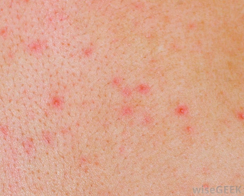 Home remedies for herpes itching relief